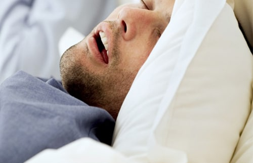 Sleep Apnea - Testing And Diagnosis